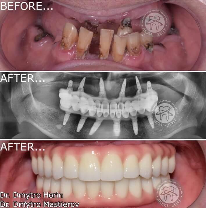 Передние зубы протезирование имплантация фото