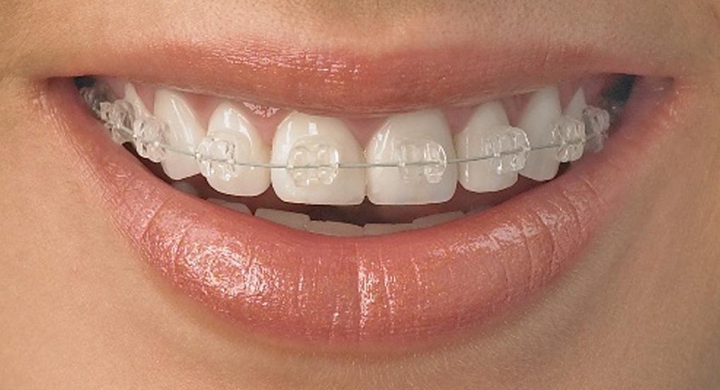 Топ-7 ответов ортодонта: как взрослым исправить кривые зубы