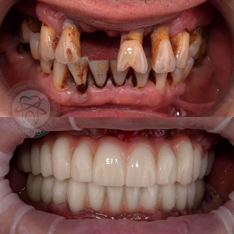 вырвали передние зубы фото
