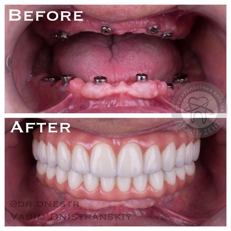 протезирование передних зубов фото
