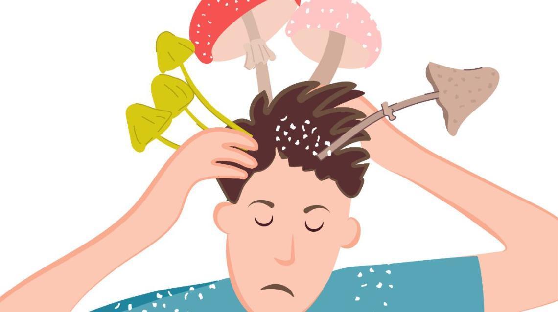 Сонник гриби на голові